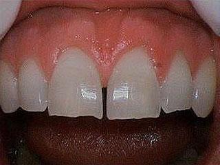 Before Dental Crowns