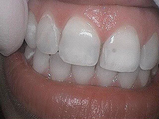 Patient 1 - before veneers