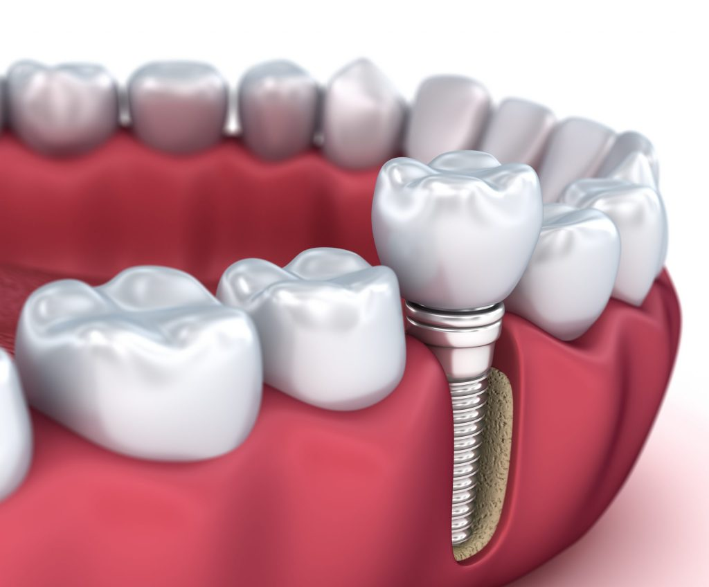 Beginner's Guide to Dental Implants