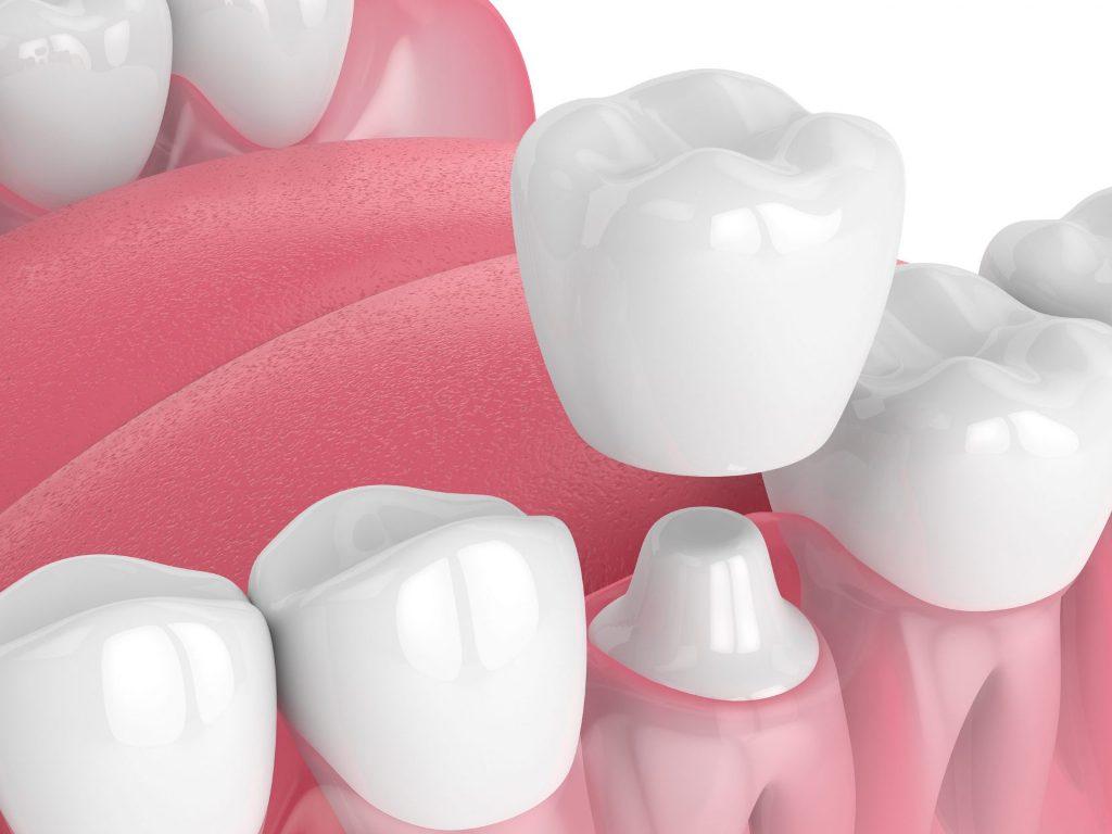 5 Main Types of Dental Crown