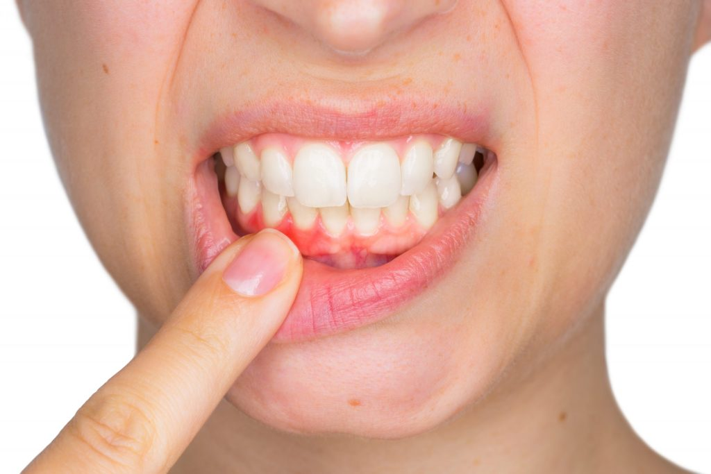 6 Ways to Find Out Gum Disease